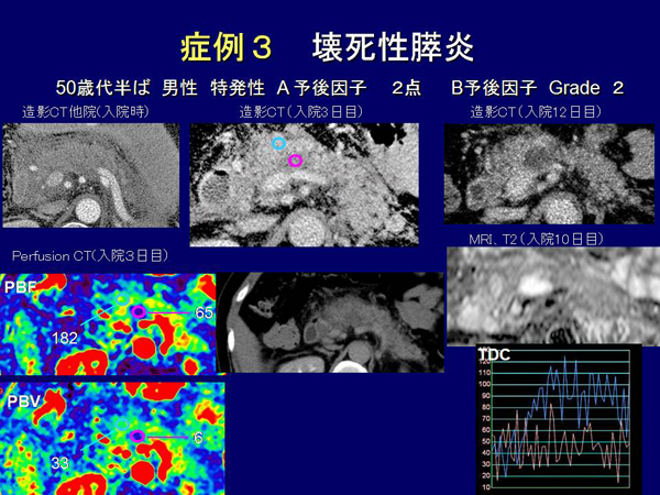 第1回一般演題4 | 開催記録 | 膵Perfusion CT画像研究会